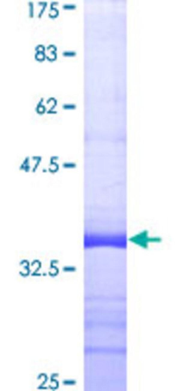 AbnovaHuman PLCL2 Partial ORF (AAH36392, 121 a.a. - 210 a.a.) Recombinant