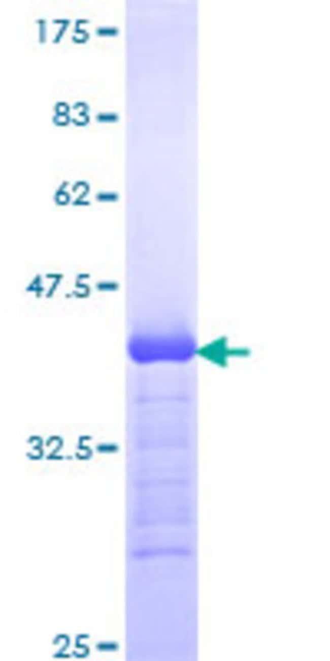 AbnovaHuman PLCB1 Partial ORF (NP_056007, 1107 a.a. - 1216 a.a.) Recombinant