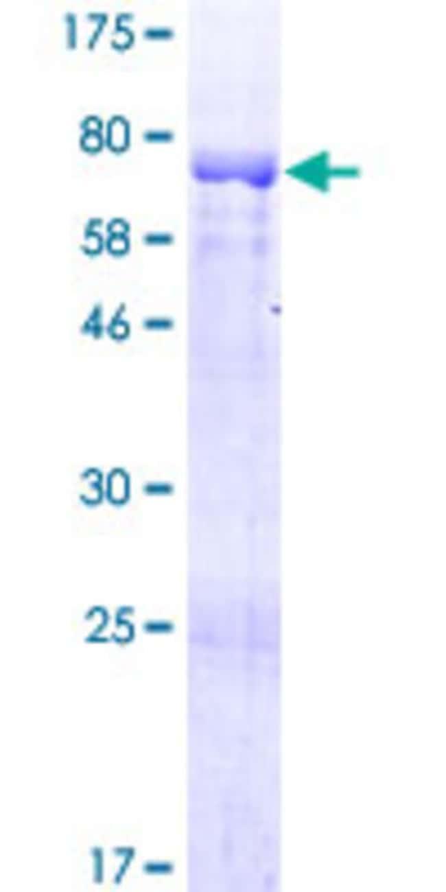 Abnova Human RP1-21O18.1 Full-length ORF (NP_001018000.1, 1 a.a. - 415