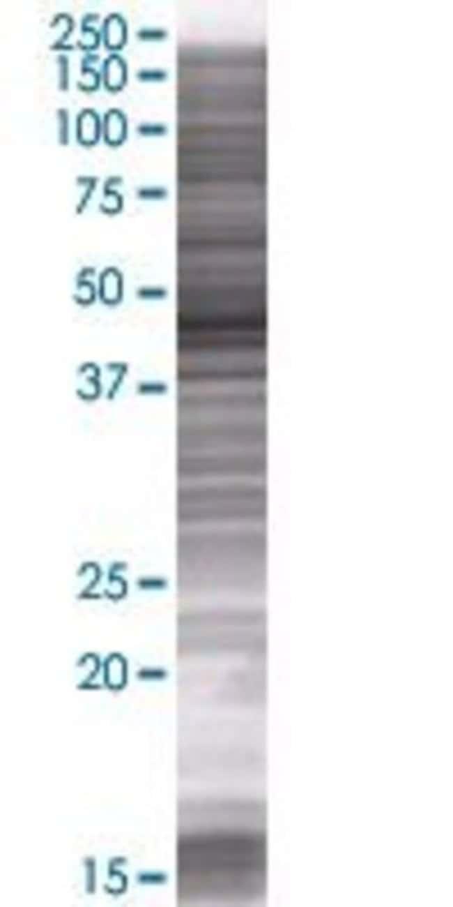 Abnova KIAA1026 293T Cell Transient Overexpression Lysate (Denatured) (T01)