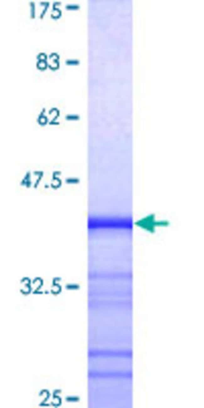 AbnovaHuman MCF2L Partial ORF (AAH20208, 220 a.a. - 319 a.a.) Recombinant