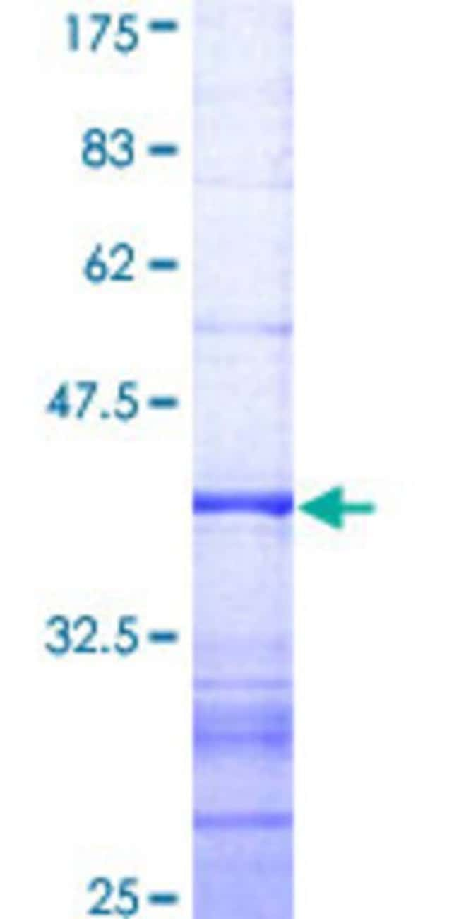 AbnovaHuman DNMBP Partial ORF (AAH41628, 491 a.a. - 590 a.a.) Recombinant
