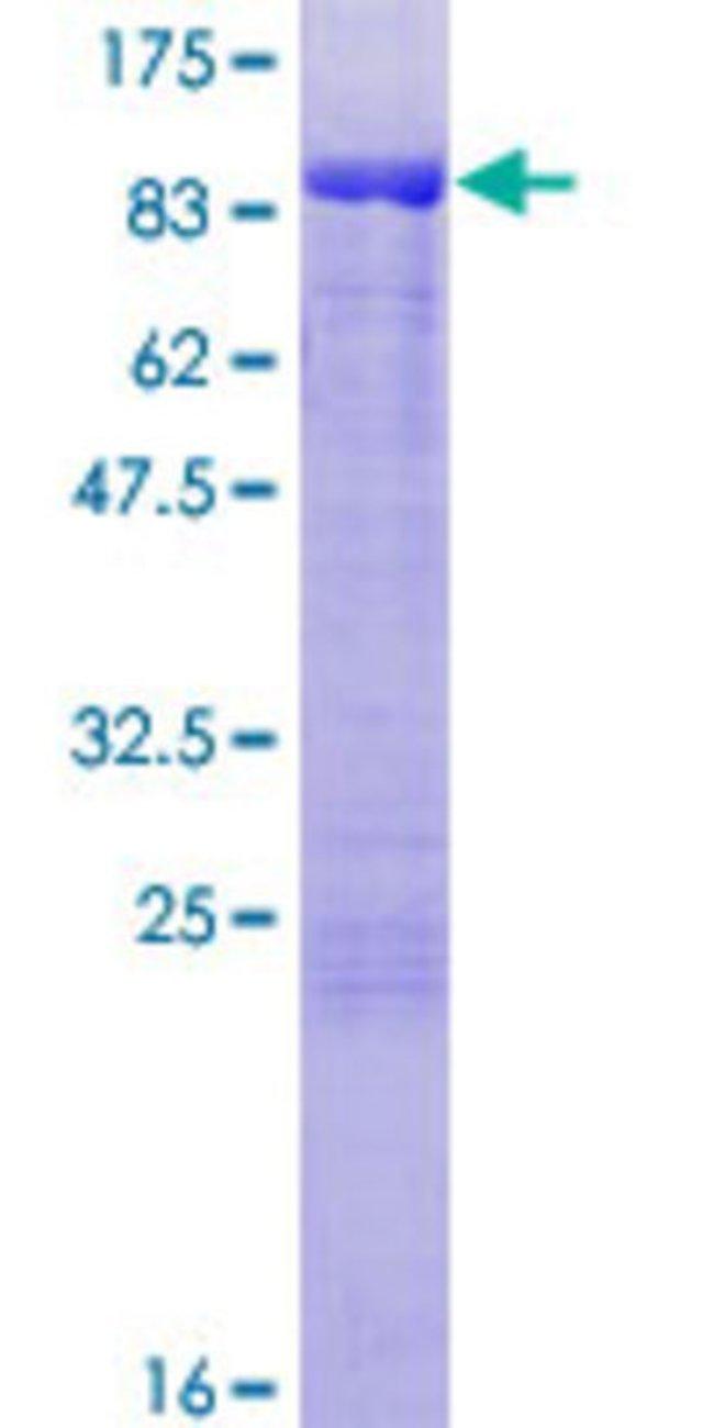 AbnovaHuman MGRN1 Full-length ORF (NP_056061.1, 1 a.a. - 576 a.a.) Recombinant