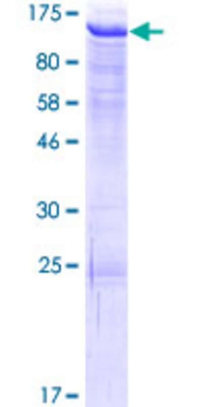 AbnovaHuman ATMIN Full-length ORF (AAH02701.1, 1 a.a. - 667 a.a.) Recombinant