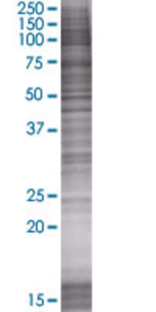 AbnovaASCIZ 293T Cell Transient Overexpression Lysate (Denatured) 100μL:Protein