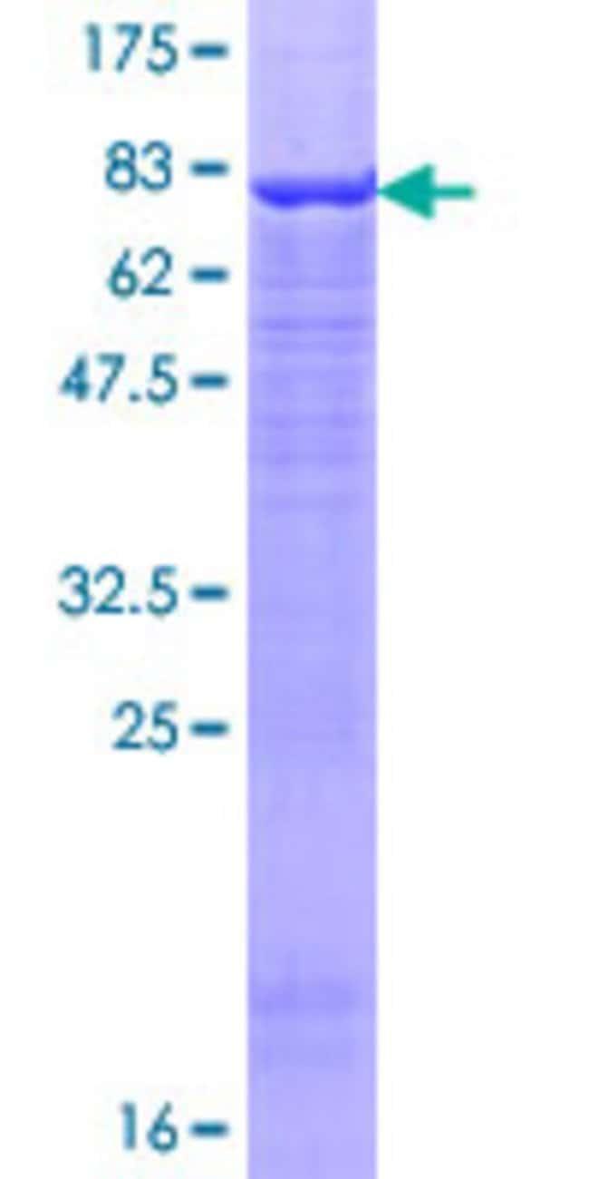 AbnovaHuman UBR2 Full-length ORF (AAH64512.1, 1 a.a. - 439 a.a.) Recombinant