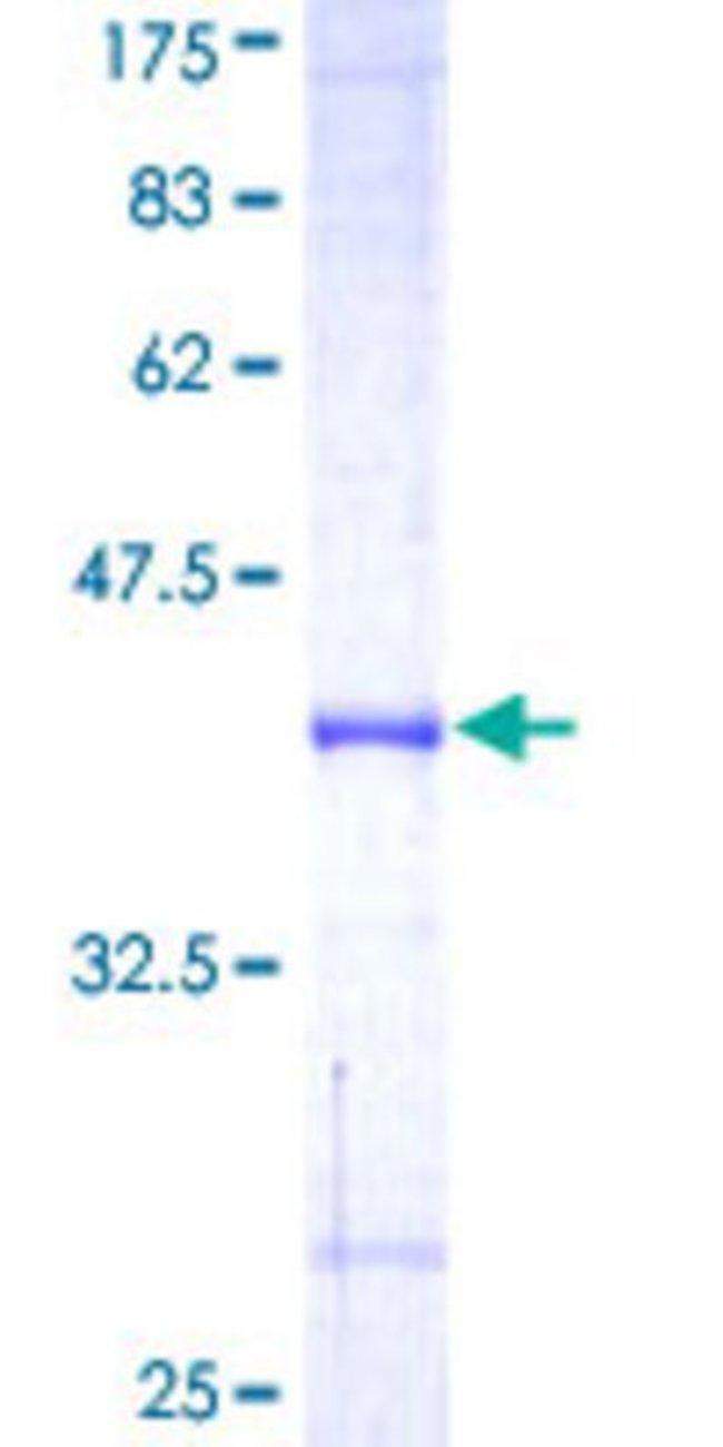 AbnovaHuman UBR2 Partial ORF (NP_056070, 1 a.a. - 100 a.a.) Recombinant