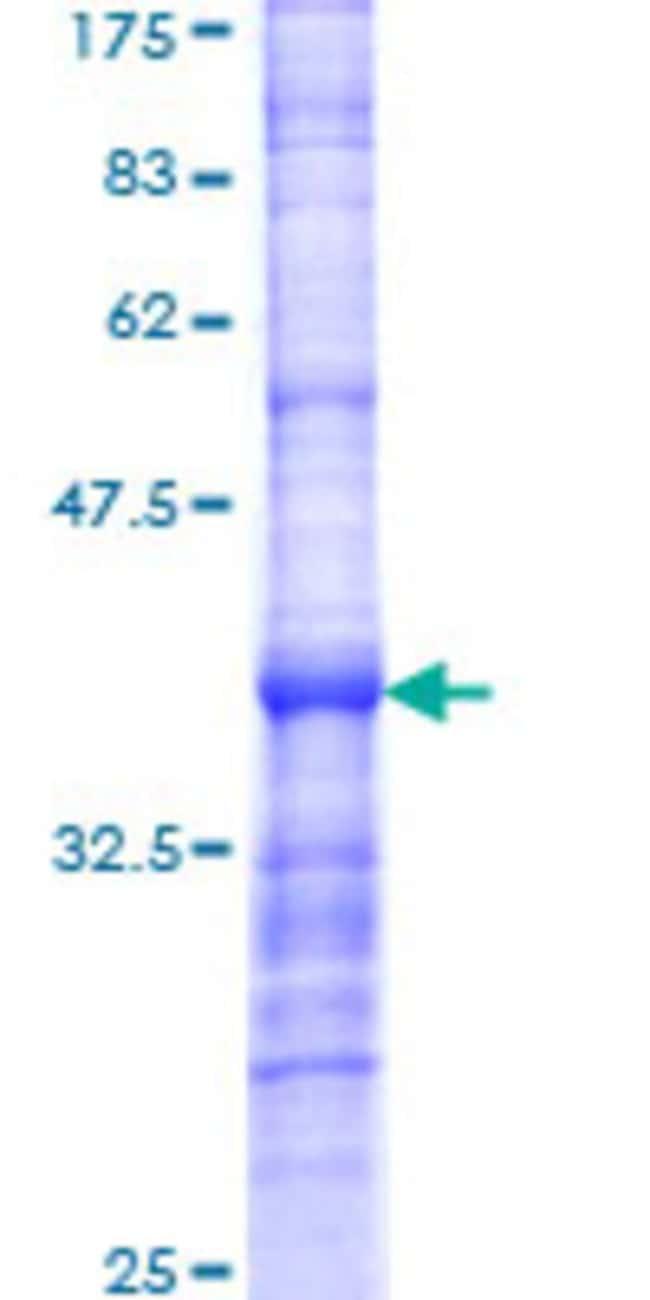 AbnovaHuman SATB2 Partial ORF (NP_056080, 206 a.a. - 294 a.a.) Recombinant