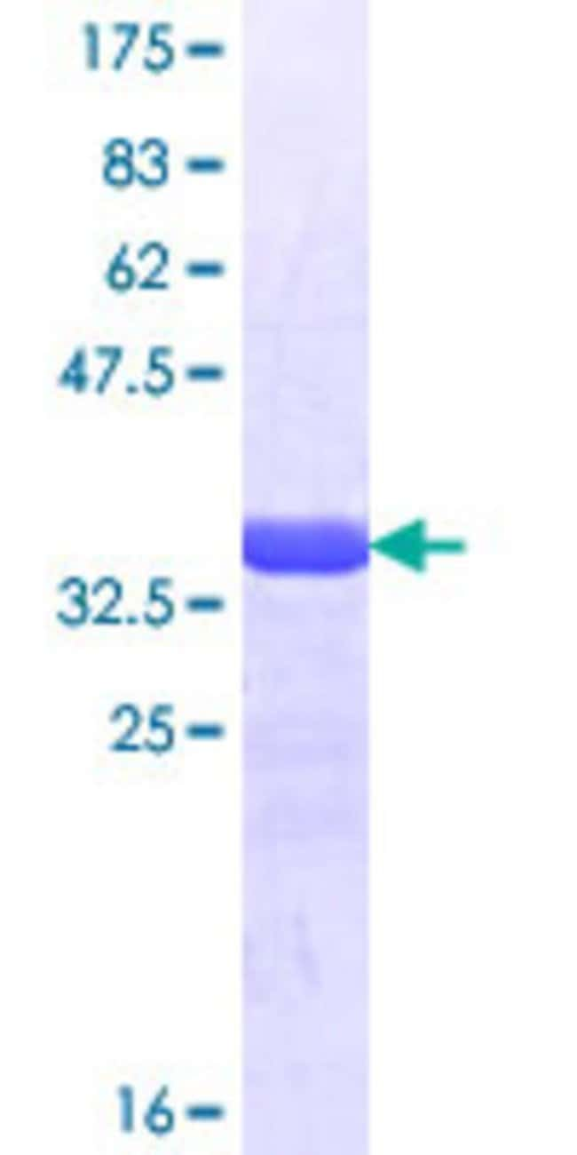 Abnova™Human CUTL2 Partial ORF (NP_056082.1, 121 a.a. - 220 a.a.) Recombinant Protein with GST-tag at N-terminal 10μg Abnova™Human CUTL2 Partial ORF (NP_056082.1, 121 a.a. - 220 a.a.) Recombinant Protein with GST-tag at N-terminal