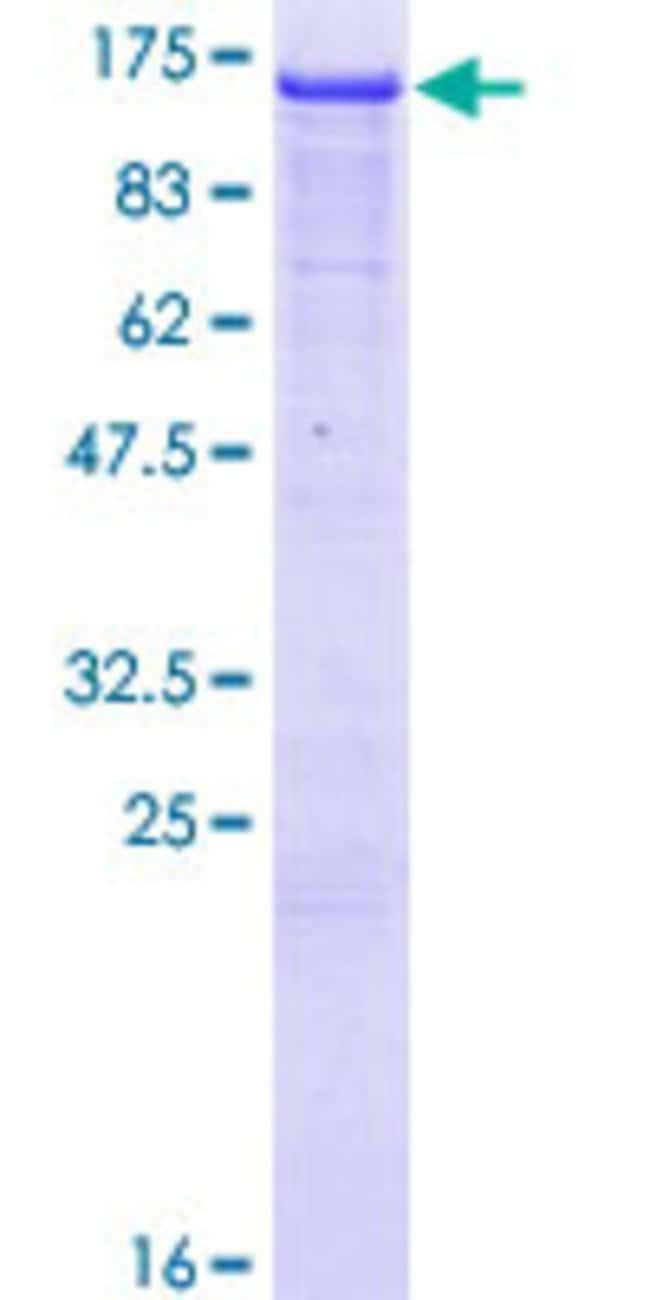 AbnovaHuman NEDD4L Full-length ORF (AAH32597.1, 1 a.a. - 911 a.a.) Recombinant