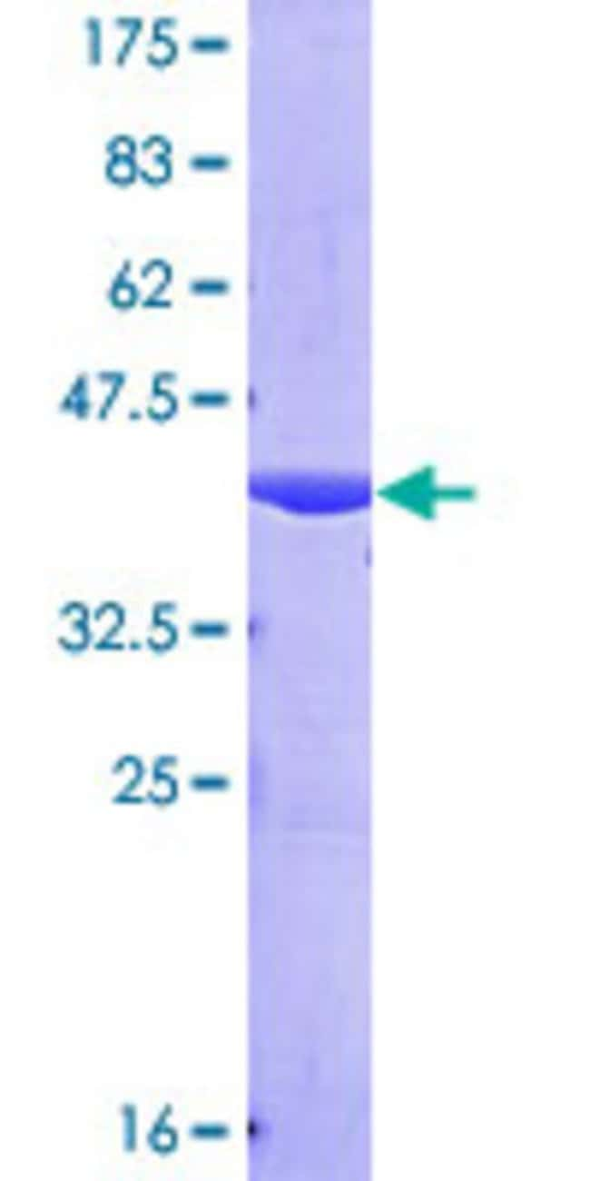 AbnovaHuman NEDD4L Partial ORF (AAH32597, 1 a.a. - 100 a.a.) Recombinant
