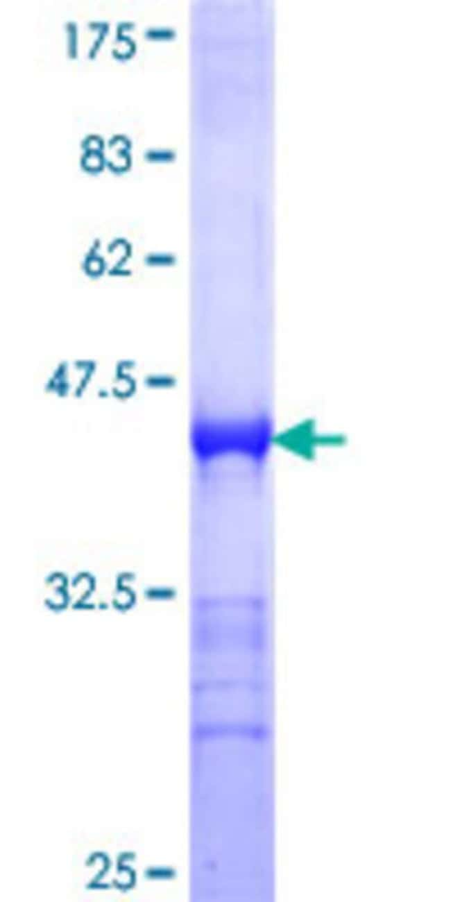 AbnovaHuman SASH1 Partial ORF (NP_056093, 1066 a.a. - 1175 a.a.) Recombinant
