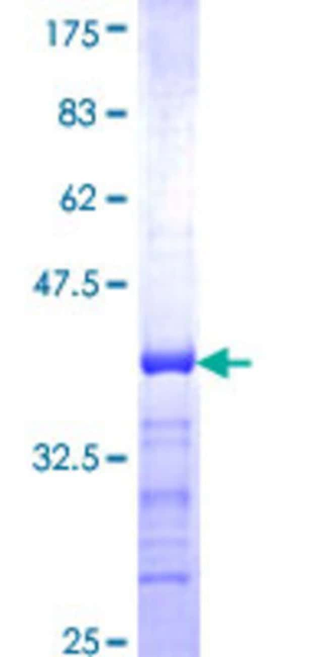AbnovaHuman CLASP1 Partial ORF (NP_056097, 1133 a.a. - 1226 a.a.) Recombinant