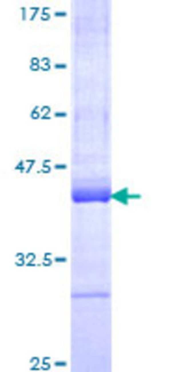 AbnovaHuman RBAF600 Partial ORF (NP_065816, 94 a.a. - 190 a.a.) Recombinant