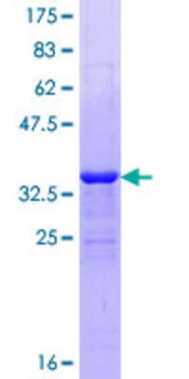 AbnovaHuman KIAA0804 Full-length ORF (AAH01001.1, 1 a.a. - 92 a.a.) Recombinant