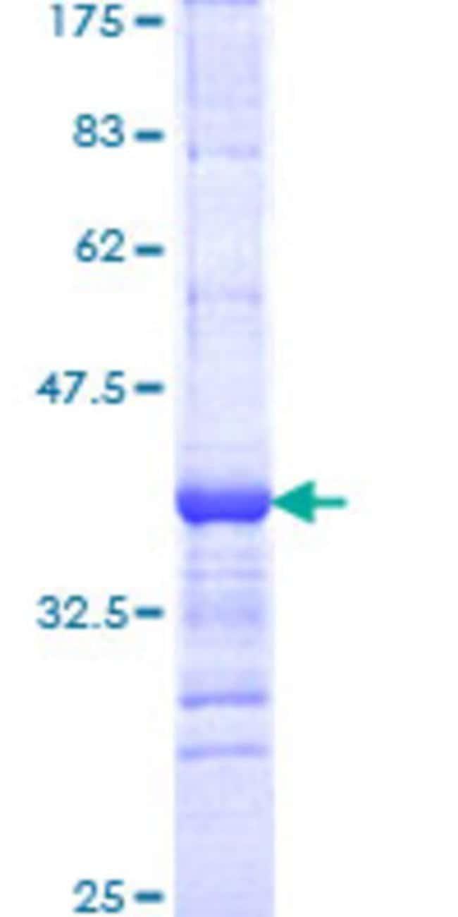 Abnova™Human KIAA0804 Partial ORF (NP_001009921, 1329 a.a. - 1428 a.a.) Recombinant Protein with GST-tag at N-terminal 25μg Abnova™Human KIAA0804 Partial ORF (NP_001009921, 1329 a.a. - 1428 a.a.) Recombinant Protein with GST-tag at N-terminal