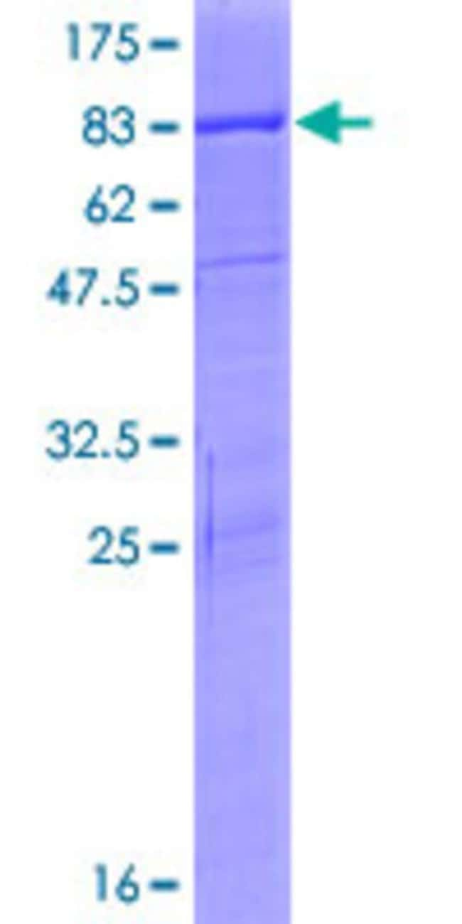 Abnova™Human PSD3 Full-length ORF (NP_996792.1, 1 a.a. - 513 a.a.) Recombinant Protein with GST-tag at N-terminal 10μg Abnova™Human PSD3 Full-length ORF (NP_996792.1, 1 a.a. - 513 a.a.) Recombinant Protein with GST-tag at N-terminal