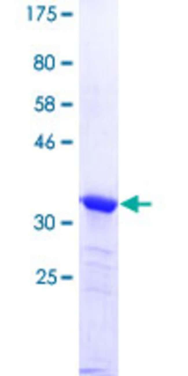 AbnovaHuman PPP1R13B Partial ORF (NP_056131.2, 1 a.a. - 90 a.a.) Recombinant