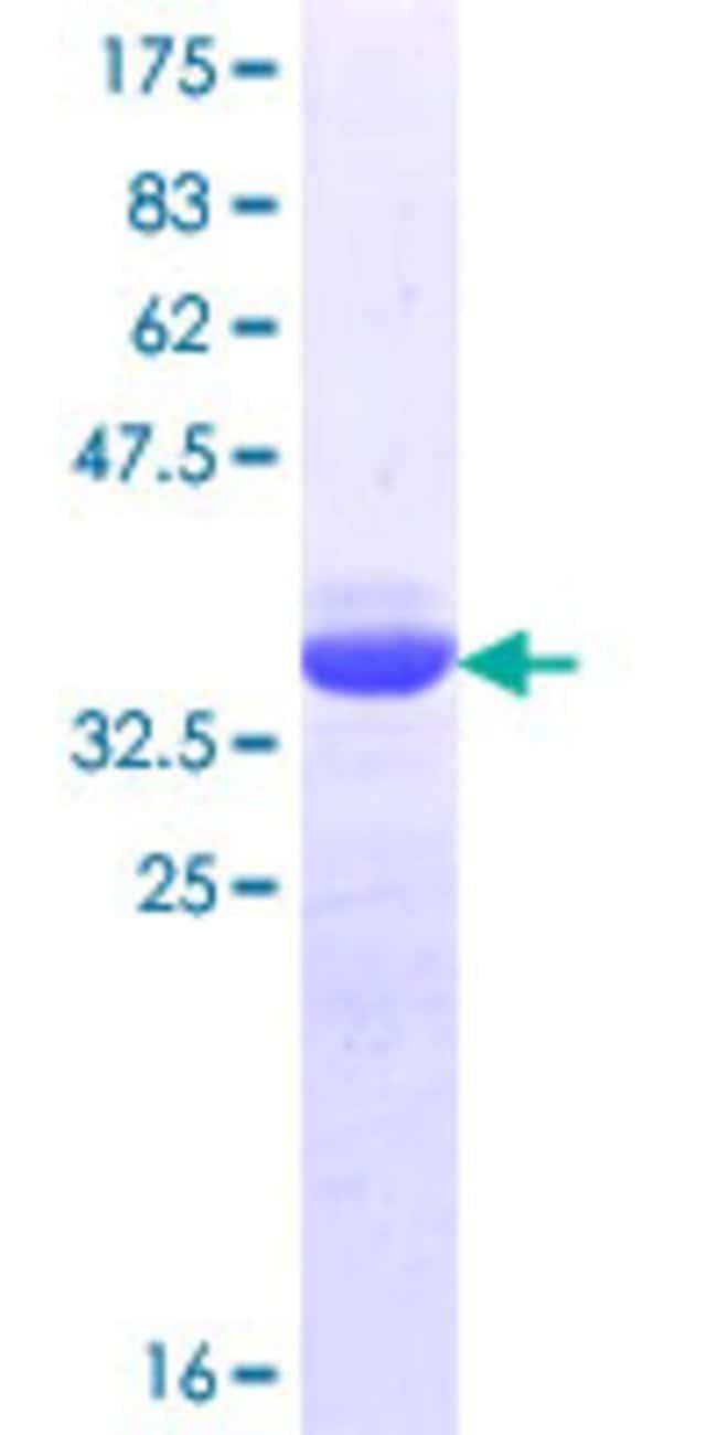 AbnovaHuman CRTC1 Partial ORF (NP_056136.1, 553 a.a. - 634 a.a.) Recombinant
