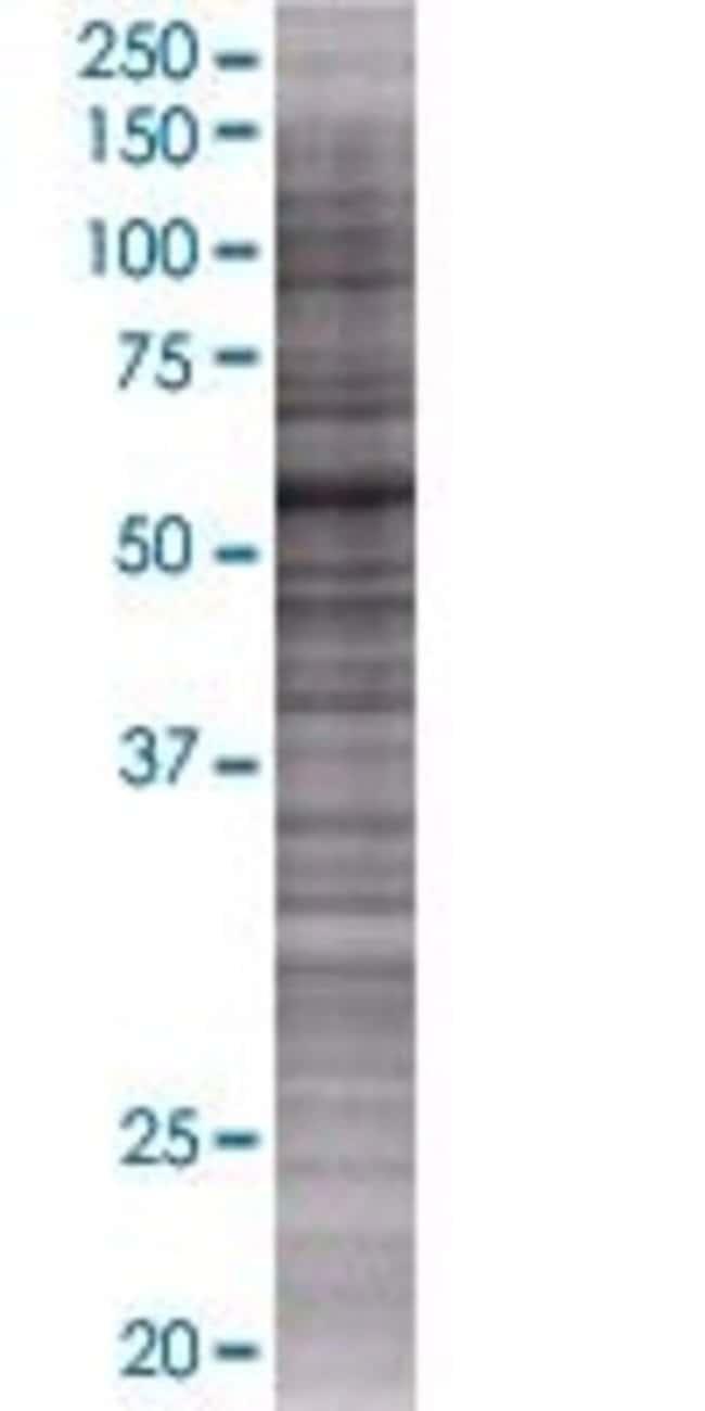 Abnova KIAA0409 293T Cell Transient Overexpression Lysate (Denatured) (T01)