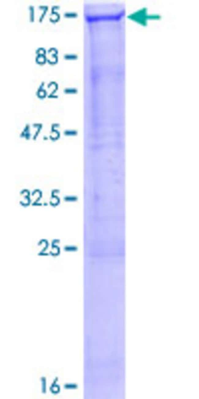 Abnova™Human SMG5 Full-length ORF (NP_056142.1, 1 a.a. - 1016 a.a.) Recombinant Protein with GST-tag at N-terminal 10μg Abnova™Human SMG5 Full-length ORF (NP_056142.1, 1 a.a. - 1016 a.a.) Recombinant Protein with GST-tag at N-terminal