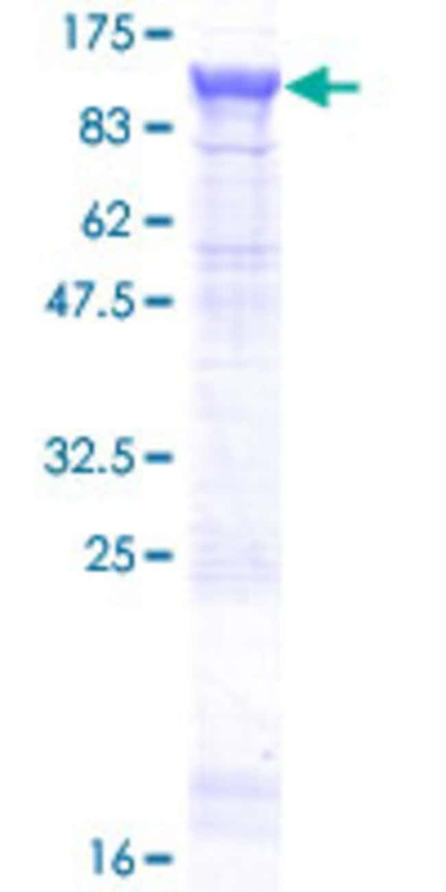 Abnova™Human NCSTN Full-length ORF (AAH47621.1, 1 a.a. - 689 a.a.) Recombinant Protein with GST-tag at N-terminal 25μg Abnova™Human NCSTN Full-length ORF (AAH47621.1, 1 a.a. - 689 a.a.) Recombinant Protein with GST-tag at N-terminal