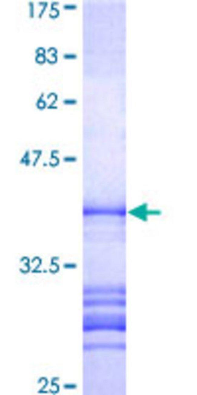 AbnovaHuman SIK3 Partial ORF (BAA76843, 1262 a.a. - 1371 a.a.) Recombinant