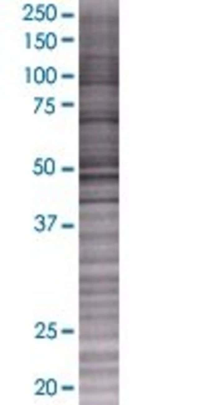Abnova KIAA0368 293T Cell Transient Overexpression Lysate (Denatured) 100µL:Life