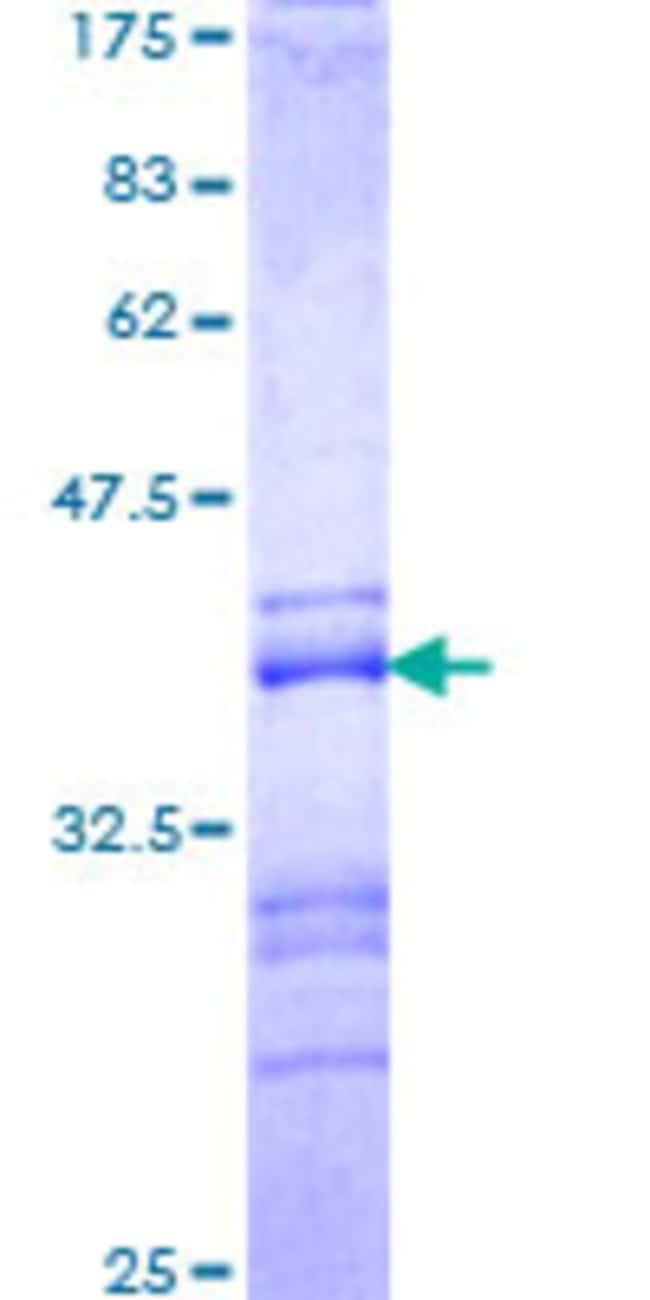 AbnovaHuman ADNP Partial ORF (NP_056154, 1018 a.a. - 1102 a.a.) Recombinant