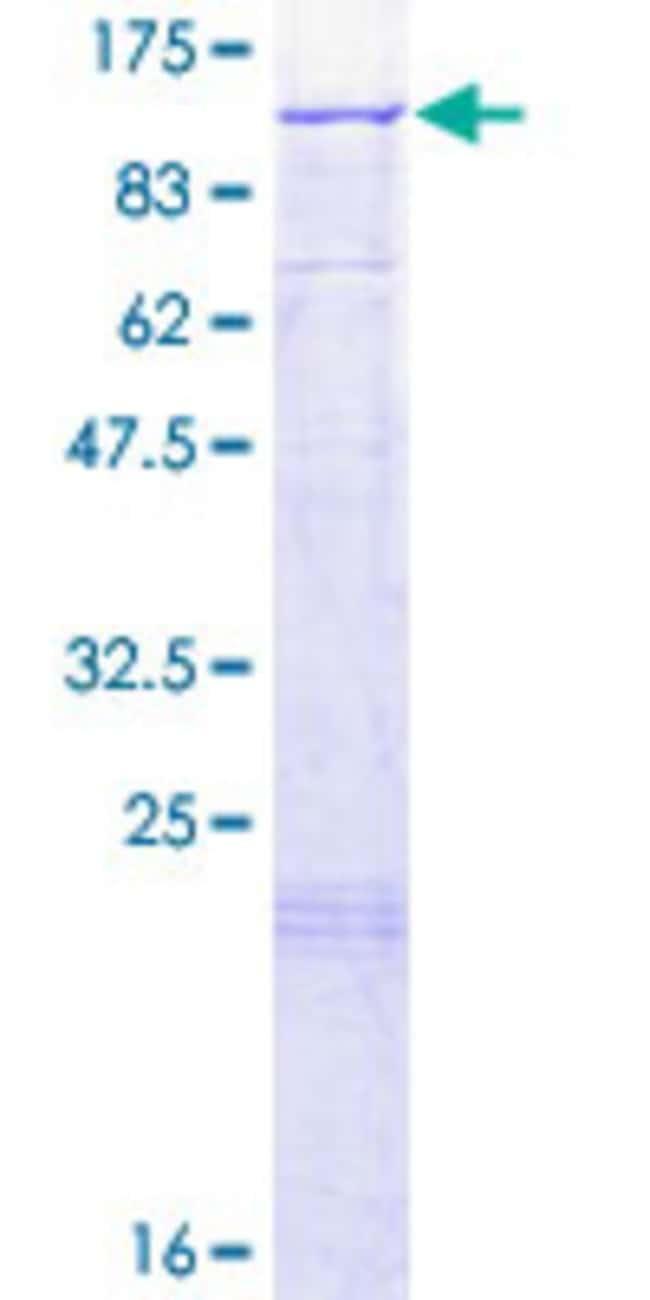 AbnovaHuman LARS2 Full-length ORF (NP_056155.1, 1 a.a. - 903 a.a.) Recombinant