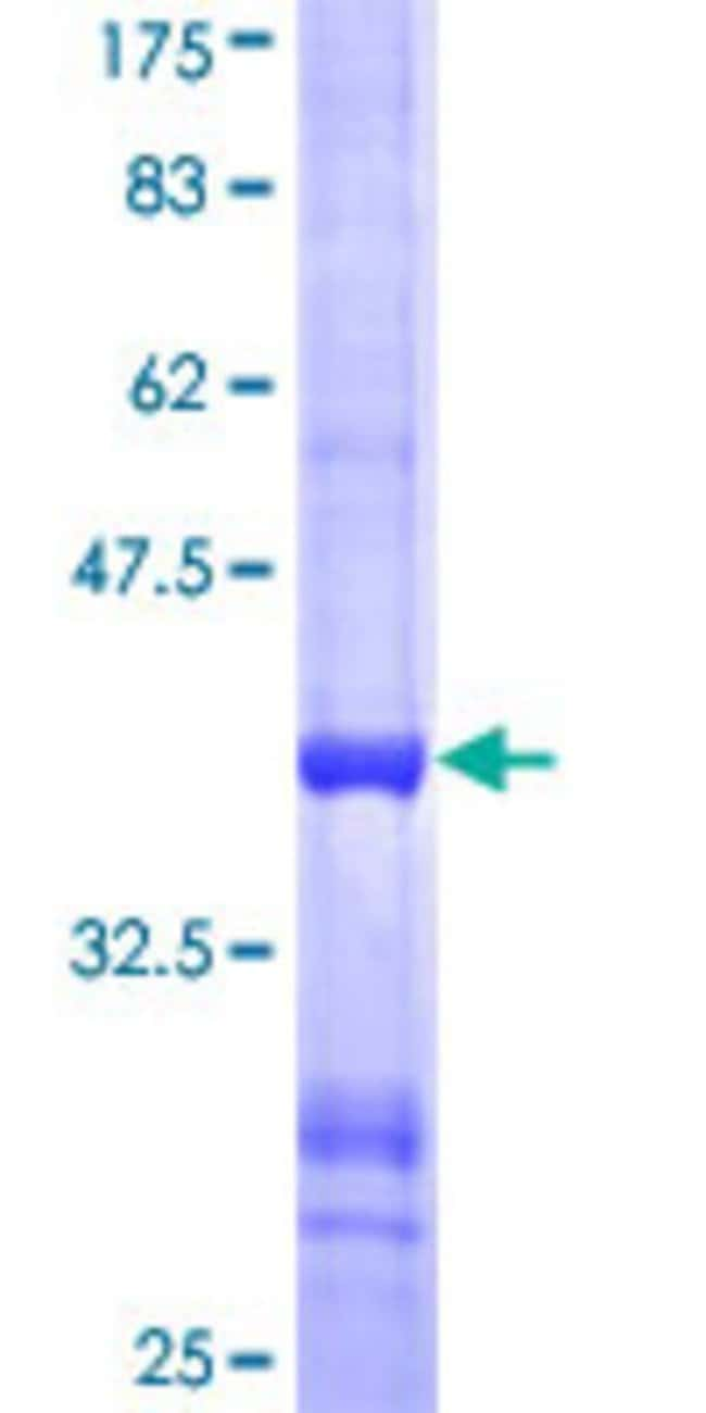 Abnova Human LARS2 Partial ORF (NP_056155, 806 a.a. - 903 a.a.) Recombinant