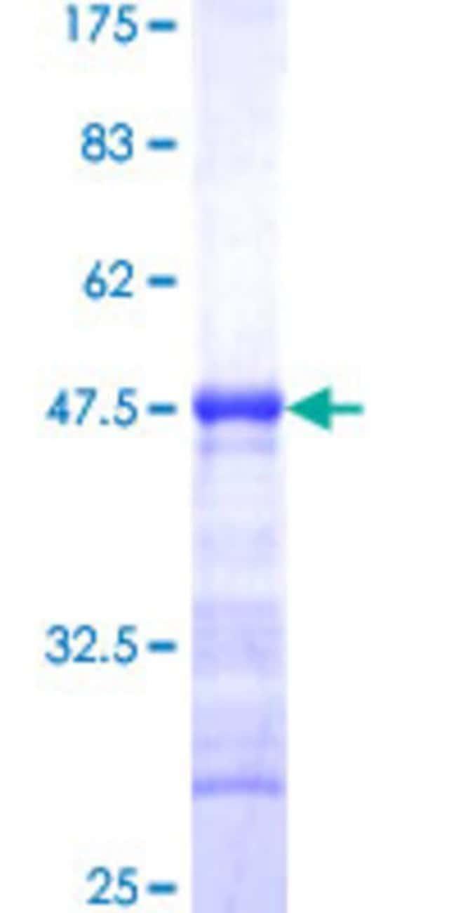 AbnovaHuman PIP5K1C Partial ORF (NP_036530, 561 a.a. - 667 a.a.) Recombinant