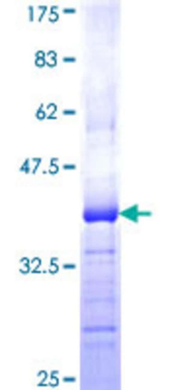 AbnovaHuman ATP13A2 Partial ORF (NP_071372, 68 a.a. - 154 a.a.) Recombinant