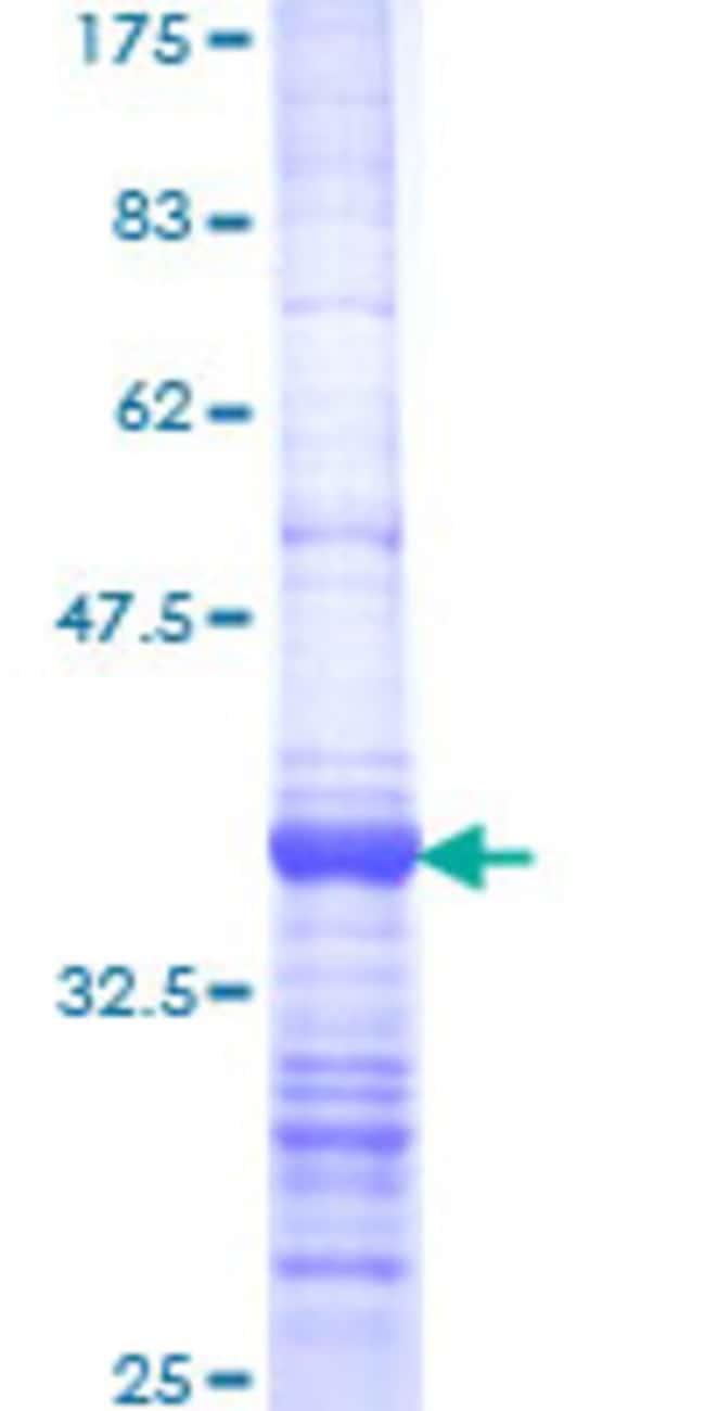 AbnovaHuman EXOSC2 Partial ORF (NP_055100, 71 a.a. - 160 a.a.) Recombinant