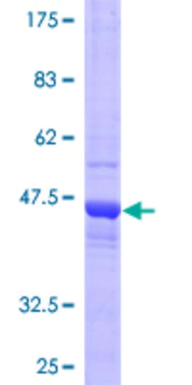 Abnova™Human COMMD3 Full-length ORF (AAH22898, 1 a.a. - 195 a.a.) Recombinant Protein with GST-tag at N-terminal 10μg Abnova™Human COMMD3 Full-length ORF (AAH22898, 1 a.a. - 195 a.a.) Recombinant Protein with GST-tag at N-terminal
