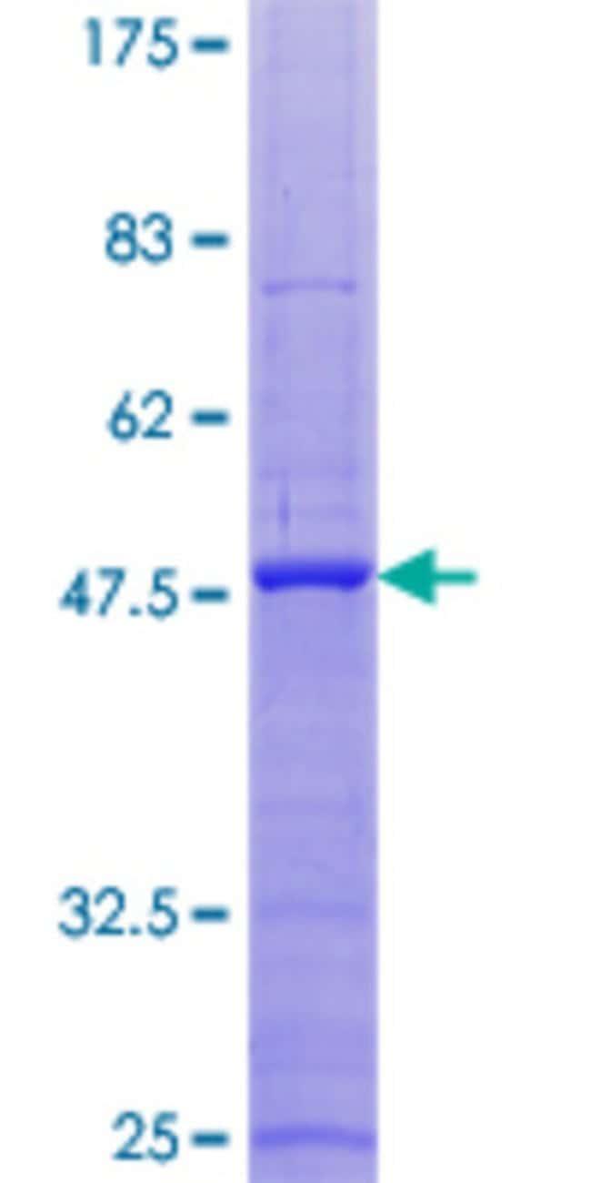 AbnovaHuman ITGB3BP Full-length ORF (NP_055103.3, 1 a.a. - 177 a.a.) Recombinant