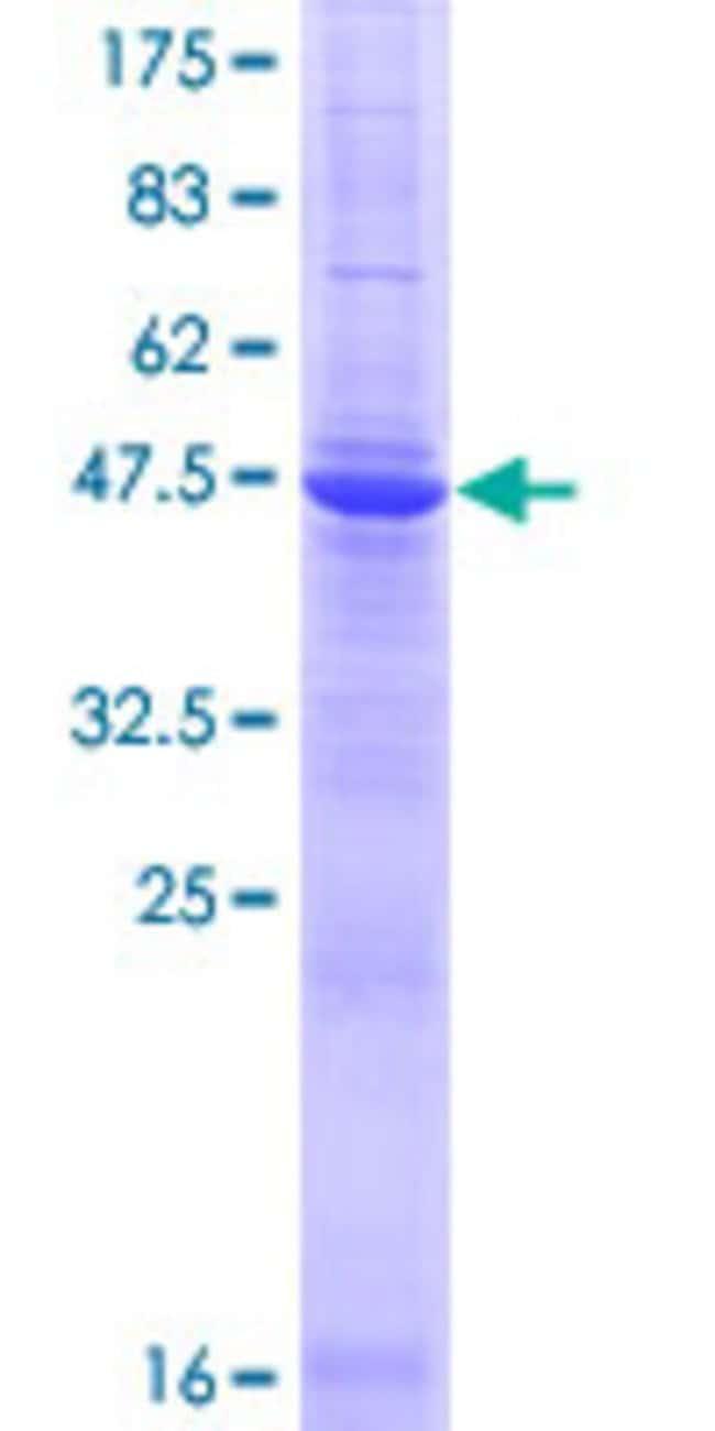 AbnovaHuman TMED3 Full-length ORF (NP_031390.1, 1 a.a. - 217 a.a.) Recombinant