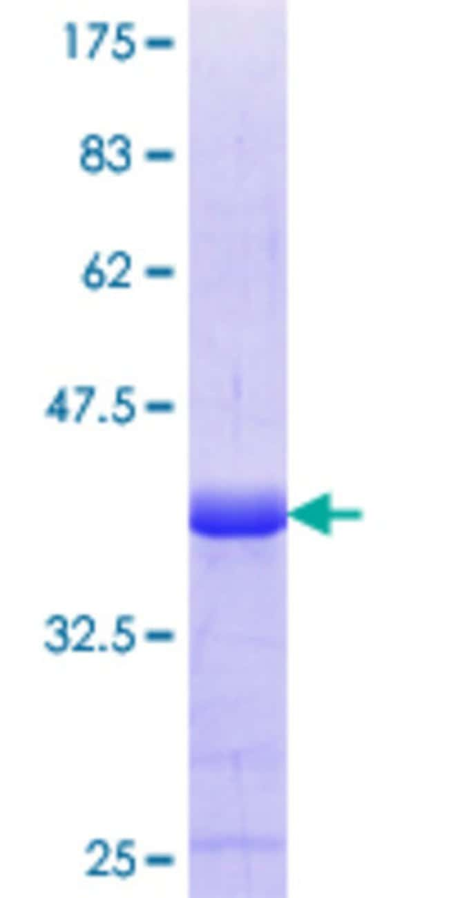 Abnova™Human GPR161 Partial ORF (NP_722561.1, 362 a.a. - 460 a.a.) Recombinant Protein with GST-tag at N-terminal 10μg Abnova™Human GPR161 Partial ORF (NP_722561.1, 362 a.a. - 460 a.a.) Recombinant Protein with GST-tag at N-terminal
