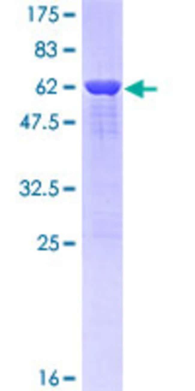 AbnovaHuman TARDBP Partial ORF (NP_031401.1, 1 a.a. - 260 a.a.) Recombinant
