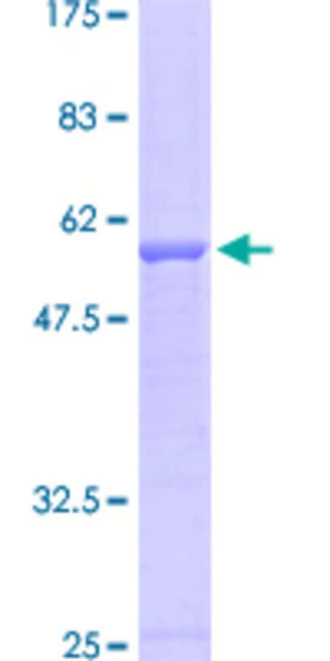 AbnovaHuman ELA3B Full-length ORF (AAH05216, 1 a.a. - 270 a.a.) Recombinant