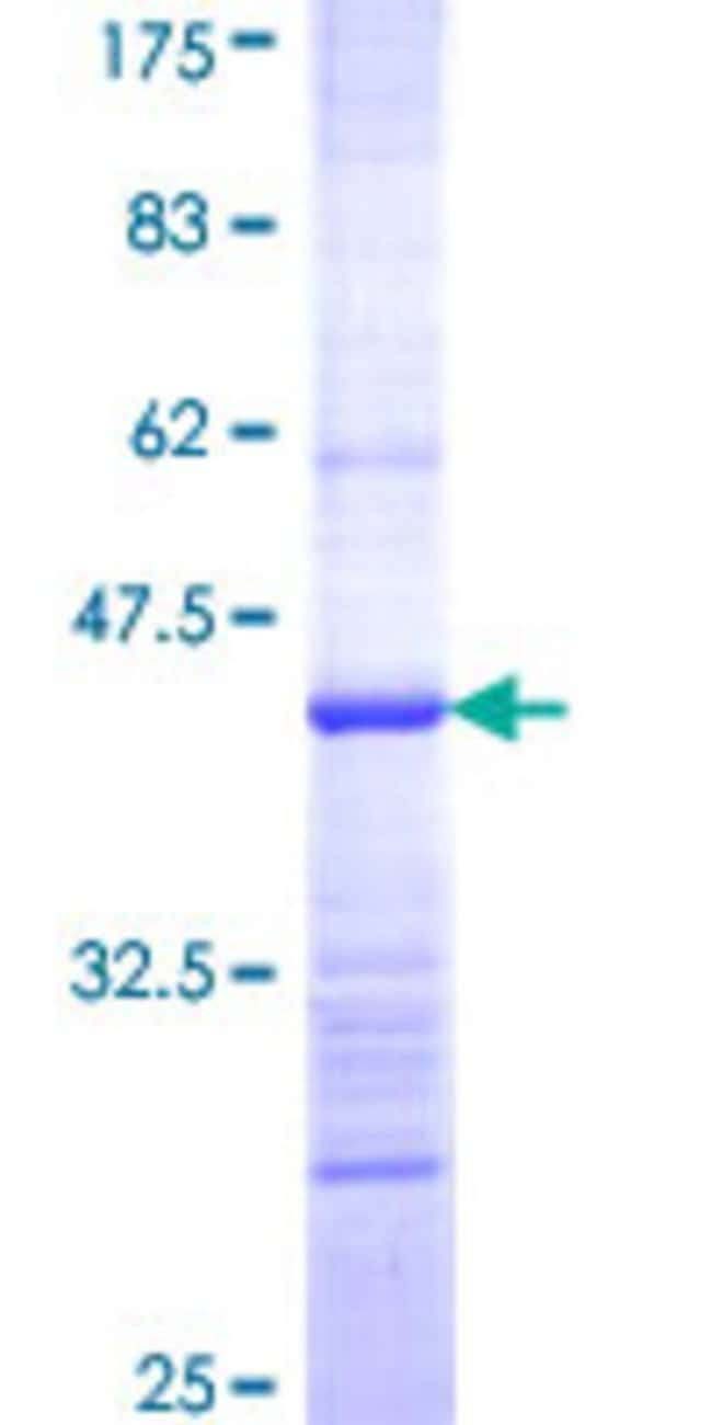 Abnova™Human HARSL Partial ORF (NP_036340, 2 a.a. - 110 a.a.) Recombinant Protein with GST-tag at N-terminal 25μg Abnova™Human HARSL Partial ORF (NP_036340, 2 a.a. - 110 a.a.) Recombinant Protein with GST-tag at N-terminal