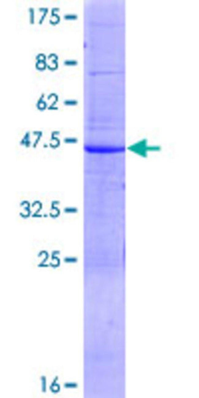 AbnovaHuman ABCA6 Full-length ORF (AAH70125.1, 1 a.a. - 185 a.a.) Recombinant