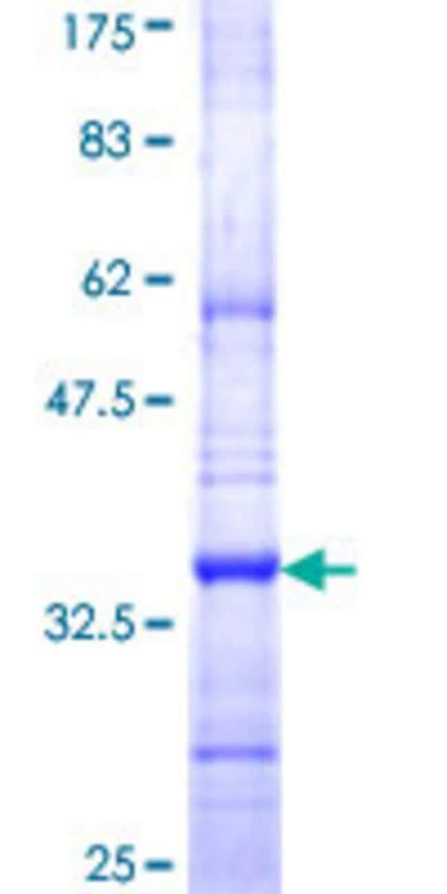 Abnova Human ICMT Partial ORF (NP_036537, 86 a.a. - 154 a.a.) Recombinant