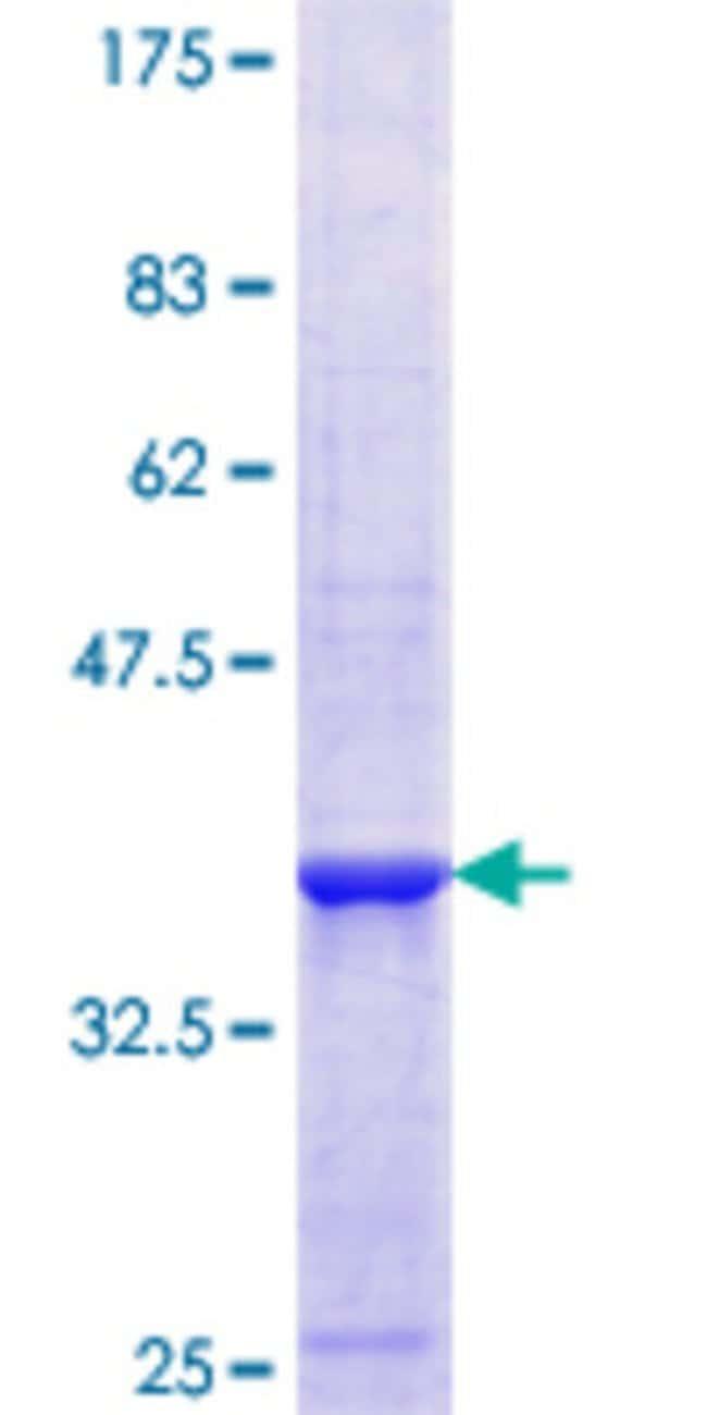 AbnovaHuman ETHE1 Partial ORF (NP_055112.2, 155 a.a. - 254 a.a.) Recombinant