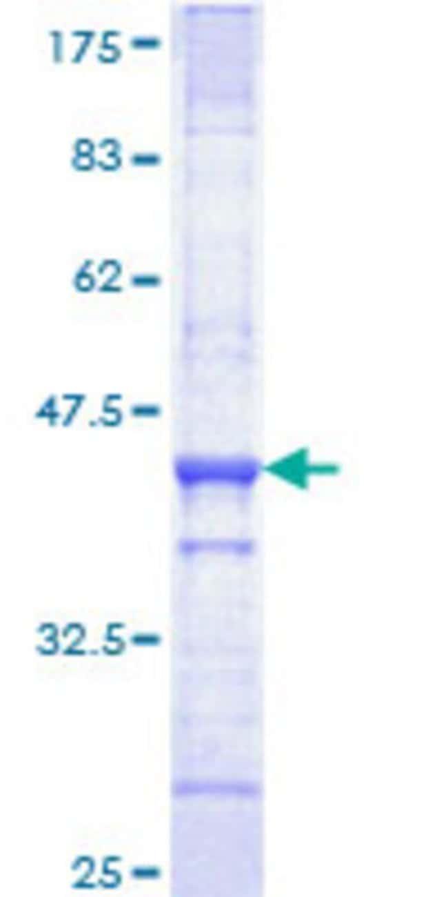 AbnovaHuman QPRT Partial ORF (NP_055113, 198 a.a. - 297 a.a.) Recombinant
