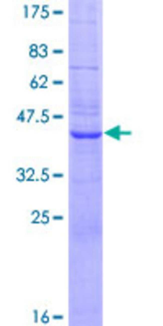 Abnova™Human SEC11L1 Full-length ORF (NP_055115.1, 1 a.a. - 179 a.a.) Recombinant Protein with GST-tag at N-terminal 10μg Abnova™Human SEC11L1 Full-length ORF (NP_055115.1, 1 a.a. - 179 a.a.) Recombinant Protein with GST-tag at N-terminal