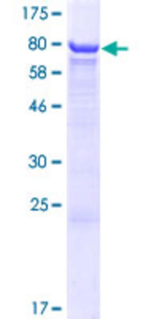 AbnovaHuman CES3 Full-length ORF (AAH53670.1, 1 a.a. - 568 a.a.) Recombinant