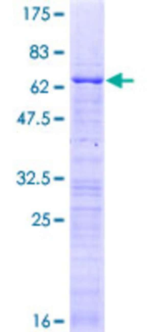 AbnovaHuman CBX7 Full-length ORF (NP_783640.1, 1 a.a. - 251 a.a.) Recombinant