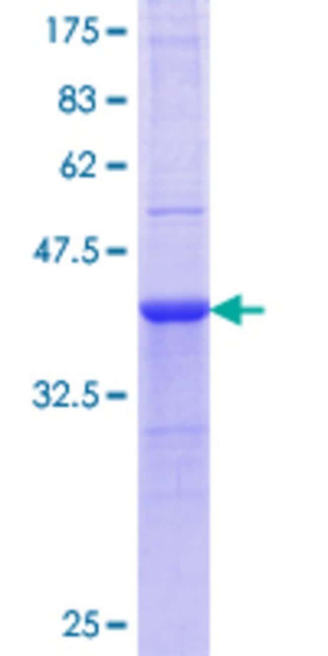 Abnova Human HAAO Partial ORF (AAH29510.1, 97 a.a. - 196 a.a.) Recombinant