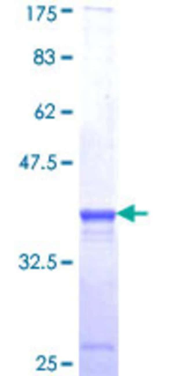 Abnova™Human MACF1 Partial ORF (AAH07330, 1 a.a. - 95 a.a.) Recombinant Protein with GST-tag at N-terminal 25μg Abnova™Human MACF1 Partial ORF (AAH07330, 1 a.a. - 95 a.a.) Recombinant Protein with GST-tag at N-terminal
